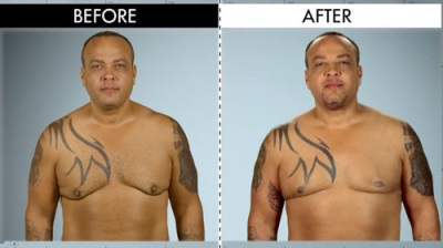 steroid gynecomastia - guillermo eiland corrective surgery - before and after