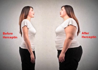 herceptin weight gain or weight loss3
