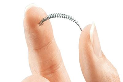 essure side effects and complications